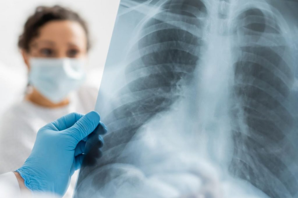 How to become a Radiologist in India